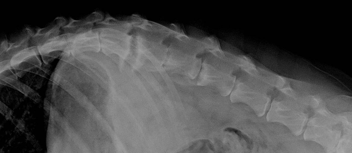 lateral radiographs of the spine